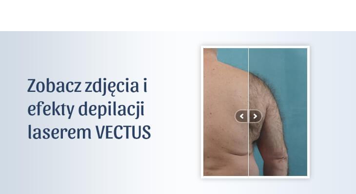 Przed i po depilacji laserowej VECTUS
